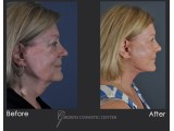 Revision Facelift with Fat Transfer