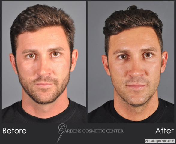 Gallery Rhinoplasty Nose Job Gardens Cosmetic Center